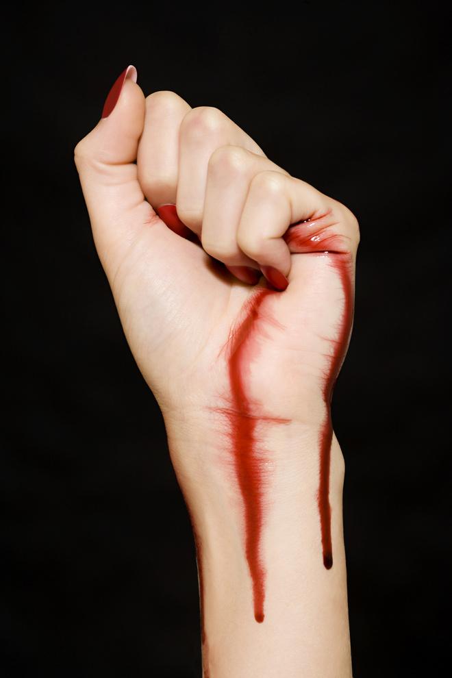 если кровь не останавливается