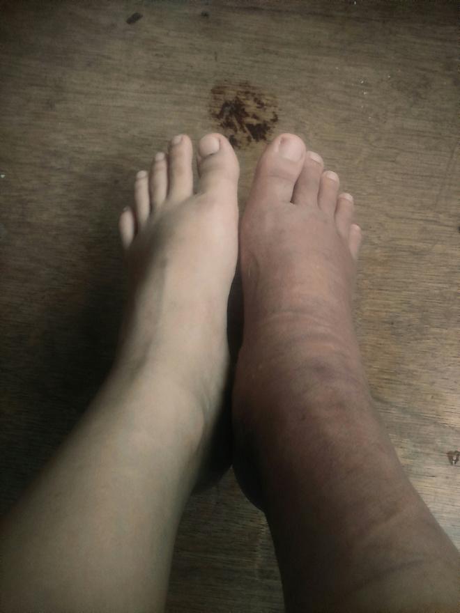 опухли ступни ног что делать