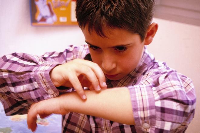 аллергия у ребенка на сладкое