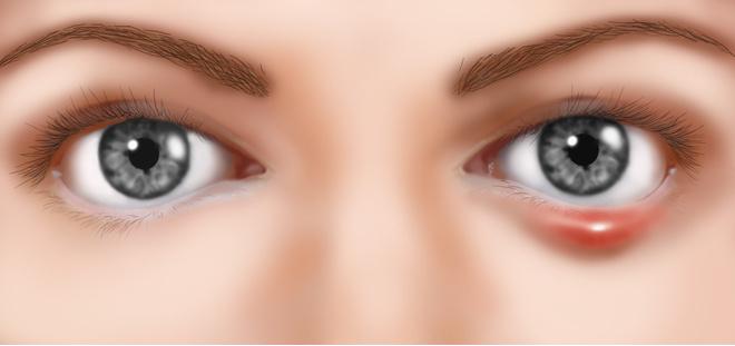 Что такое халязион глаза