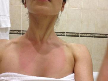 Сати Казанова пожаловалась на солнечный ожог.