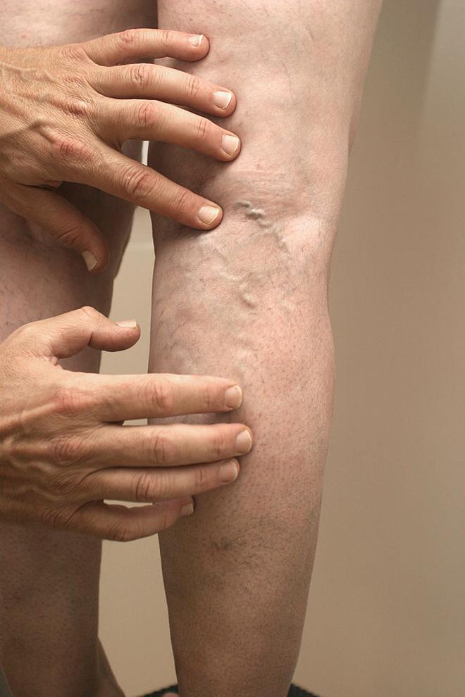 как предотвратить варикоз