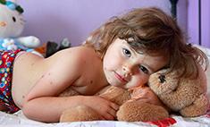 Ветрянка: что нужно знать о «детской болезни»
