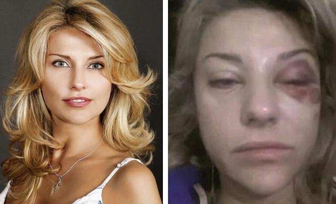 Екатерина Архарова избита: фото