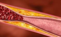 Высокий холестерин в крови - это опасно для здоровья! Особенности диеты