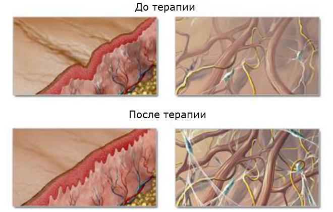 Омоложение фиробластами в Санкт-Петербурге: отзывы, противопоказания, фото до и после