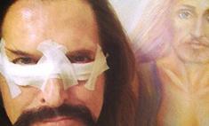 Никита Джигурда сделал пластическую операцию ради жены