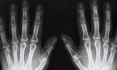 Сегодня – 115 лет со дня открытия рентгеновских лучей