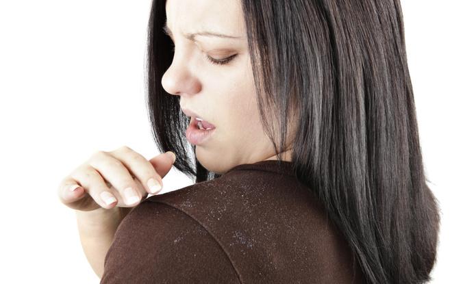 Как избавиться от жирности волос ТОП 20 ЛУЧШИХ СРЕДСТВ! 12
