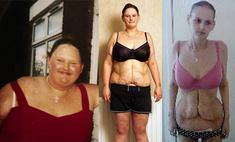 Самая толстая девушка Англии умирает от анорексии после резекции желудка
