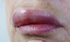 Отек губ: основные причины появления.