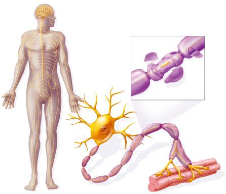 синдром гийена барре диагностика