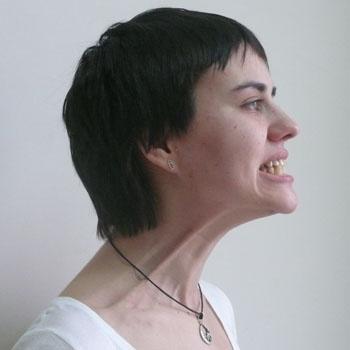 7. Упражнение для шеи. С усилием оттяните нижнюю губу (не перемещая уголки рта) вниз, обнажая нижние зубы. Если вы правильно выполняете упражнение, то на шее будет виден рельеф мышц.