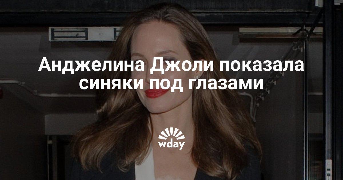 Анджелина Джоли показала синяки под глазами