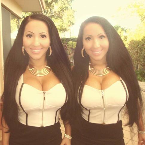 Самые одинаковые близнецы