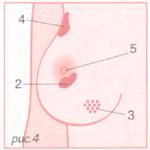 """Срочно обратитесь к врачу, если Вы обнаружили: 1. Любое появившееся изменение в молочной железе. 2. Втяжение кожи или соска. 3. Отечность кожи в виде """"лимонной корки"""". 4. Уплотнение в подмышечной области. 5. Специфические выделения из соска (прозрачные, кровянистые)."""