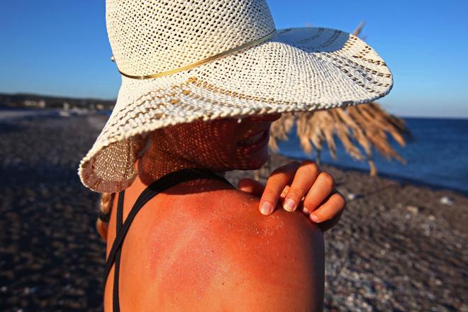Что делать, если облезает кожа после загара