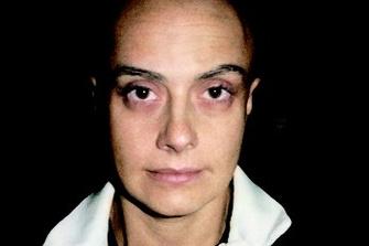 25 июля 2005. Хорошая новость: опухоль уменьшается.