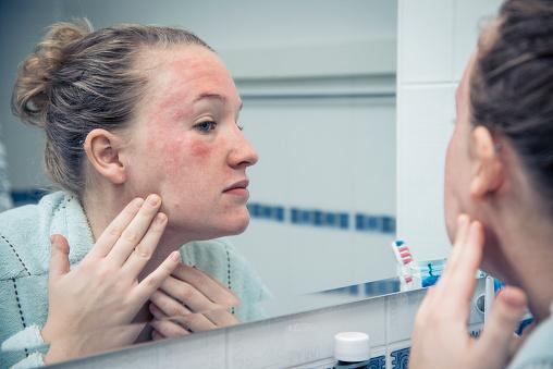 Народные средства от дерматита на лице