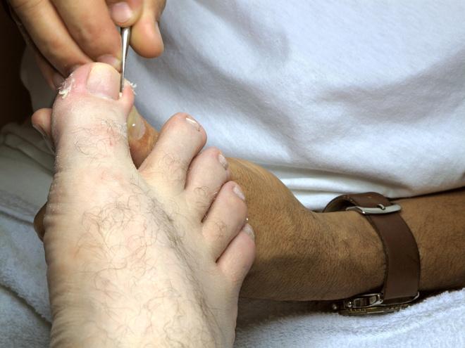 Средство от вросшего ногтя