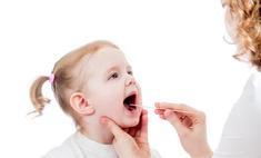 Лечение фарингита у ребенка в домашних условиях