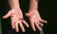 ученые выяснили мужчин короткими пальцами шансов умереть коронавируса