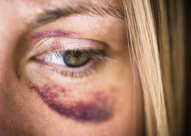 Синяк под глазом, как и кровоподтек на любом другом месте тела – это внутритканевое кровоизлияние.