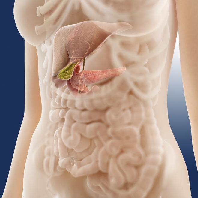 диета при желчнокаменной