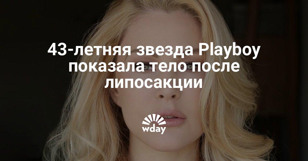43-летняя звезда Playboy показала тело после липосакции