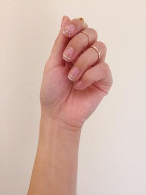 от чего темнеет кожа на пальцах рук при носке латунных колец