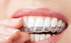 Хотите ослепительную улыбку? Самостоятельное отбеливание зубов