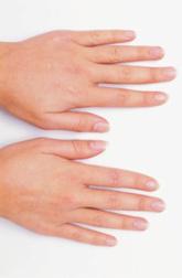 Состояние ногтей