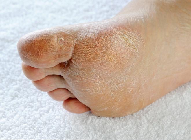 Чем лечить грибок пальцев в домашних условиях