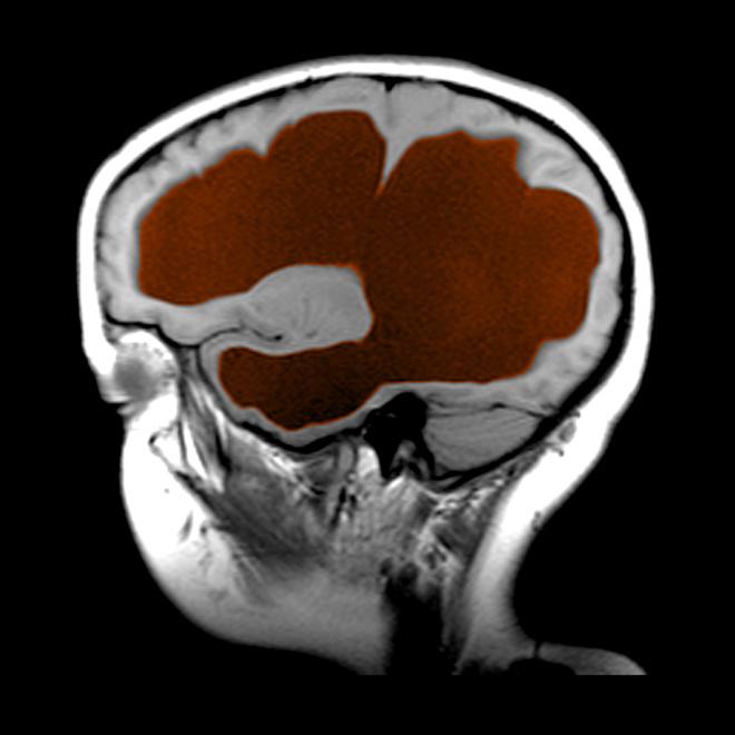 признаки гидроцефального синдрома