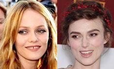 Улыбайся чаще: топ-10 звезд с неидеальными зубами