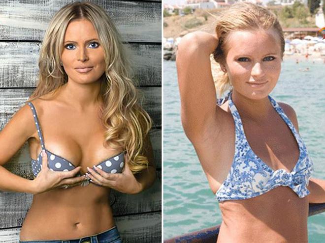 Дана Борисова увеличила грудь