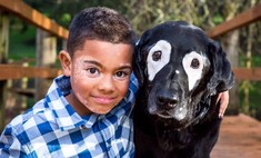 Собака спасла мальчика с необычной кожей от депрессии
