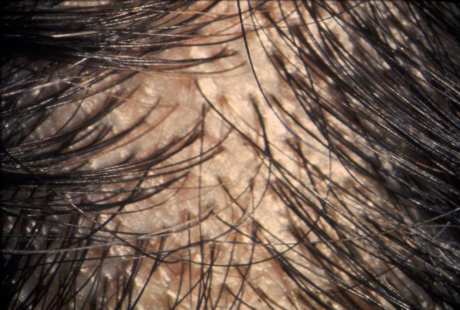 поредели волосы