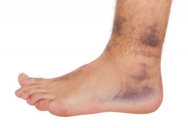 Как убрать синяк на ноге