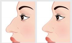 Нос с горбинкой – причина комплекса? Способы корректировки формы носа