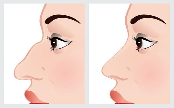 Ринопластика носа тула