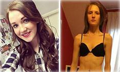 Стать моделью: чтобы похудеть, девушка съедала 17 граммов в день