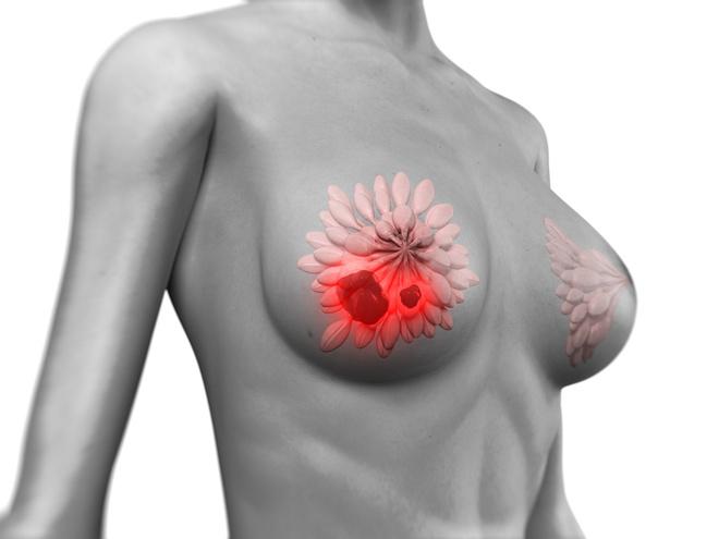 шишки в грудной железе