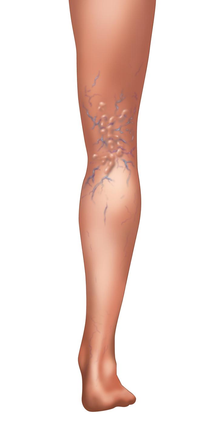 выступающие вены на ногах