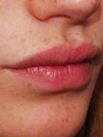 Верхняя губа больше нижней