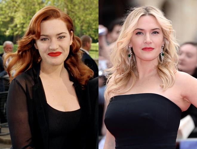 Кейт Уинслет до и после пластики фото