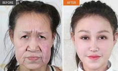 китайская девочка редкой болезни выглядела старушка пластическая операция