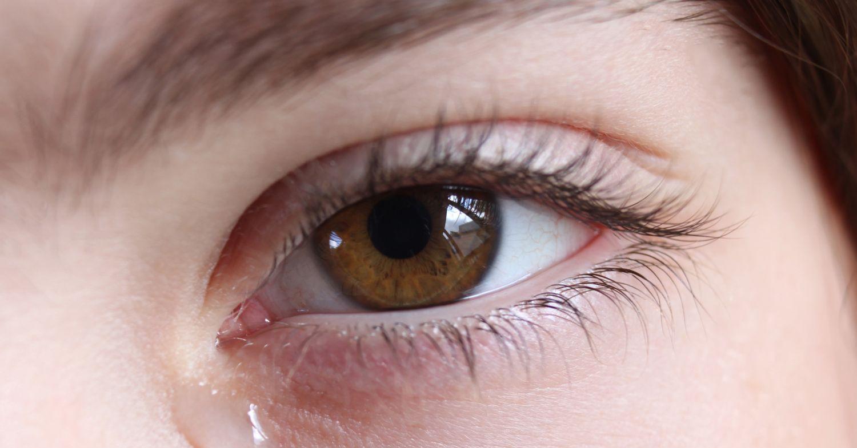 Почему щипит глаз и что делать