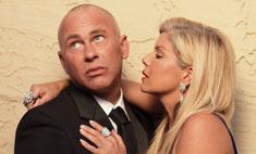 Борьба с облысением: как помочь своему мужчине?