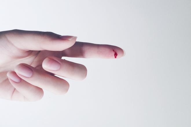 Не сворачивается кровь причины